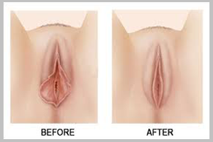 Vaginoplasty-confidentlover